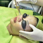 Thải độc da tại Cần Thơ - Giải cứu da hư tổn