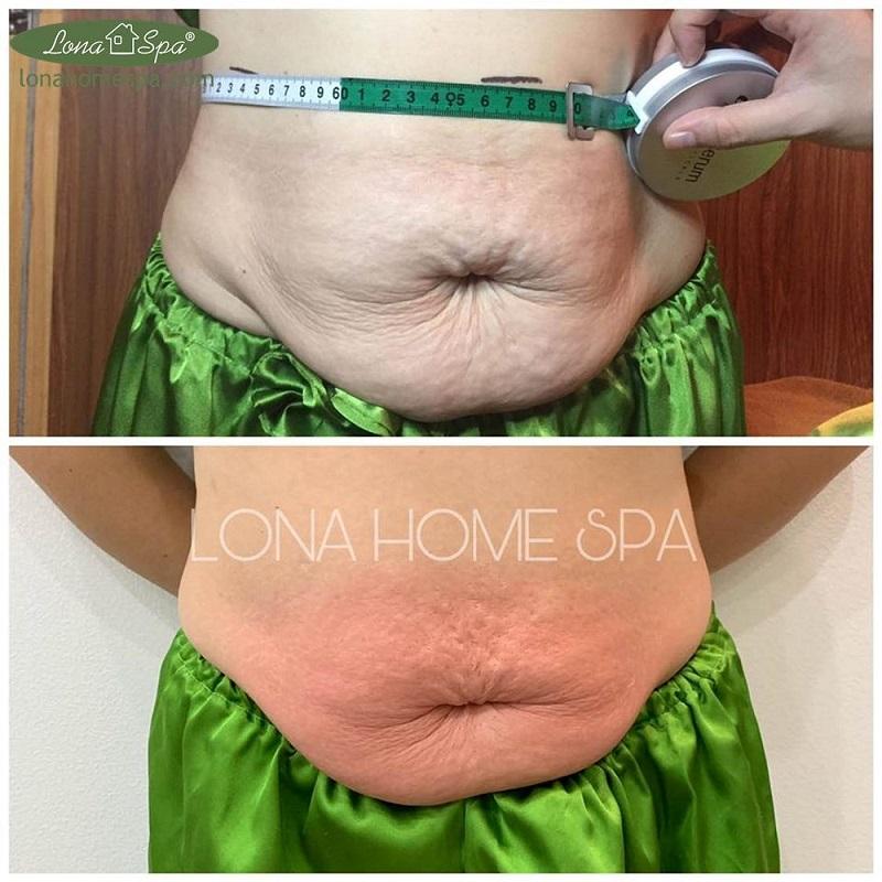 Kết quả săn chắc da vùng bụng với RF tại Lona Home Spa