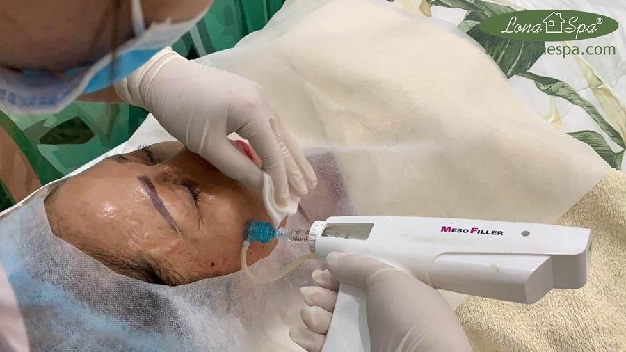 Cấy Mesotherapy xóa nhăn tại Cần Thơ